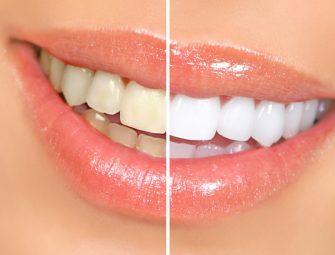 日本人の歯の白さの平均は意外と汚い!?
