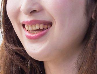 歯が汚いと5秒で恋愛対象外になる!?
