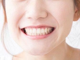 歯科技工士が本気でちゅらトゥースホワイトニングの効果調べてみた!